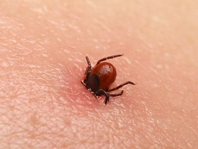 10 Ways to Keep the Pesky Ticks Out of Your Yard